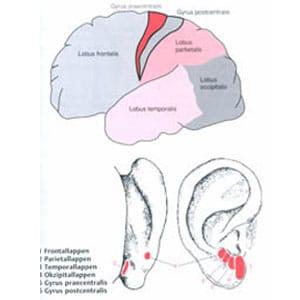 Therapie direkt über das Gehirn